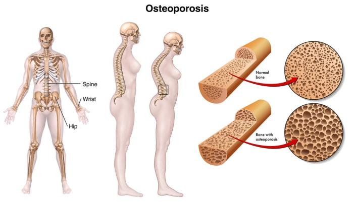 Body-Areas-Affected-By-Osteoporosis
